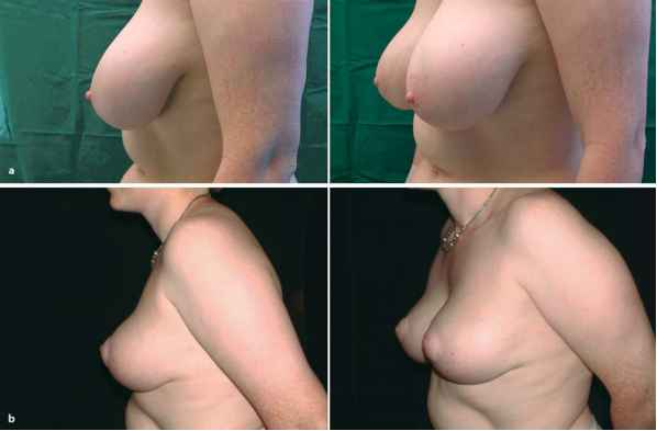 Stop Hypertrophic Scars Around Areola