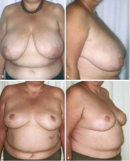 Harley Medical Breast Reduction Pictures