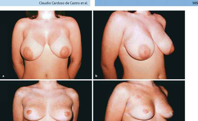 Years Old Breast Hypertrophy
