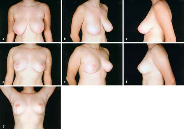 breast reduction pictures hot