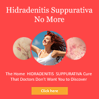 Hidradenitis Suppurativa No More & Earn 75% Commission - Hot Niche