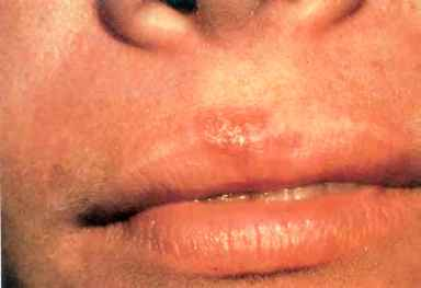Recurrent Herpes Simplex Impetigo