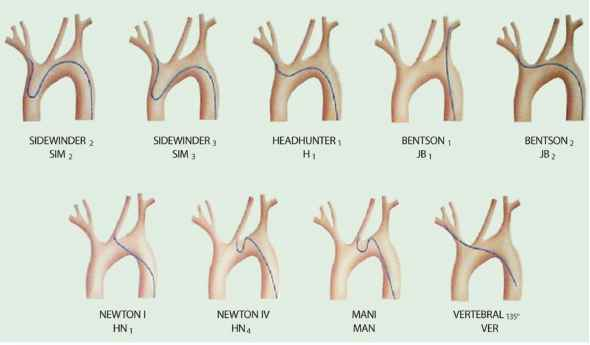 Aortic Arch Types