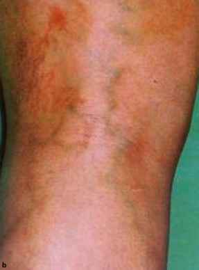 Saphena Vari Enlarged Vein