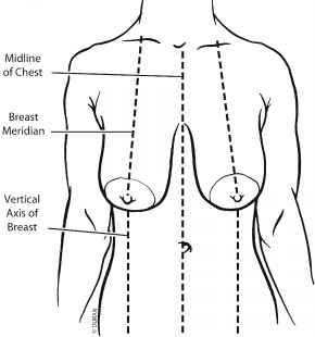 Superior Pedicle Breast Reduction