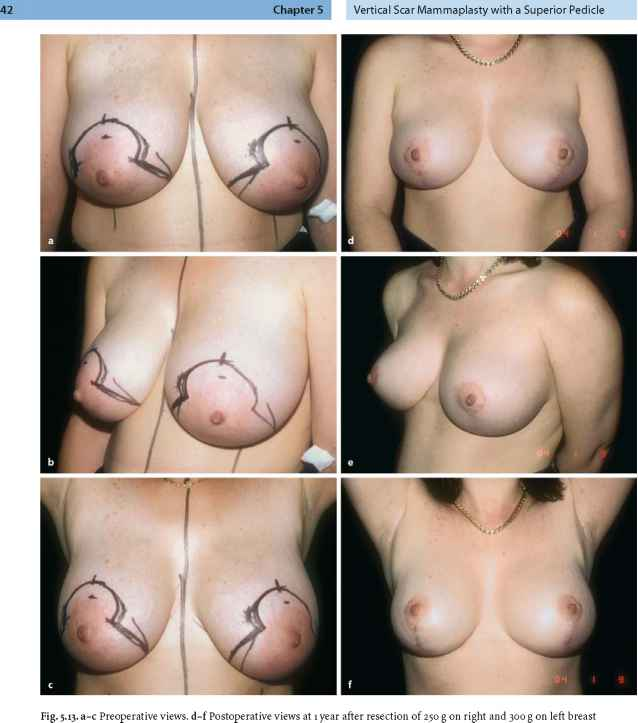 Extreme Breast Growth Teens