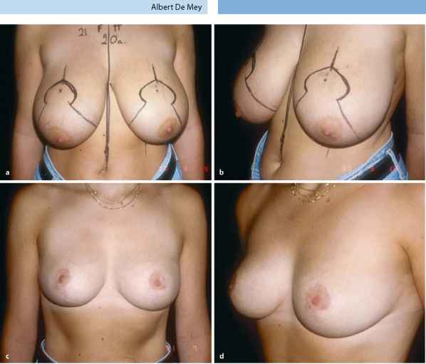 Vertical Scar Breast Reduction