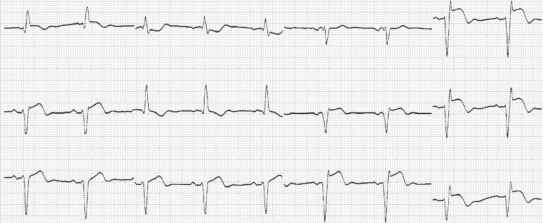 Signs After Anterior Infarction