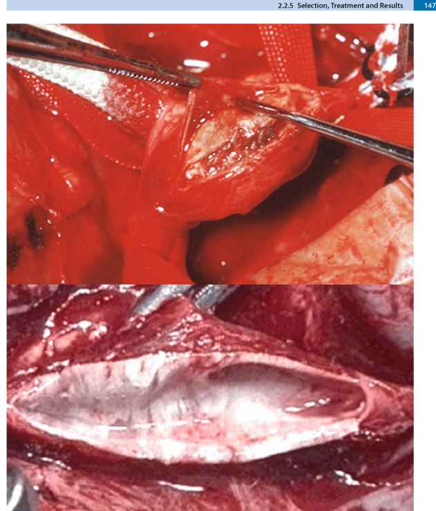 Carotid Thromboendarterectomy