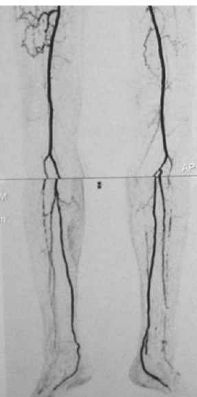 Below The Knee Angiography