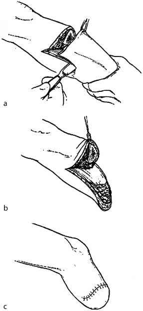 amputation of extremities - vascular surgery