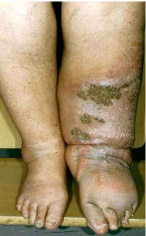 Leg Edema Vesicles